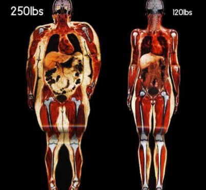 Two Women Body Scans via SciencePorn on Twitter