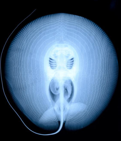 X-ray of a stingray via science pron